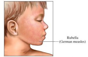 Rubella german measles