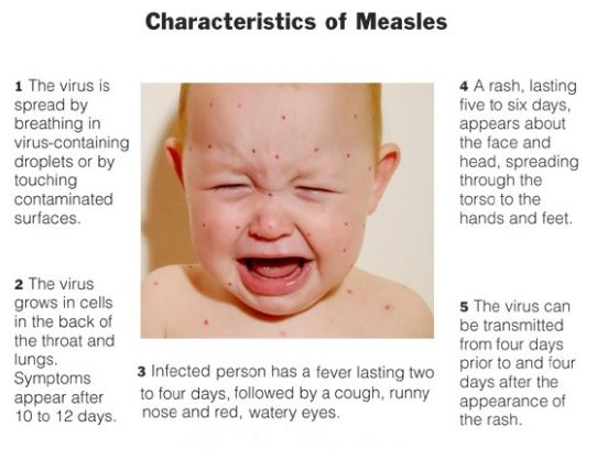common symptoms and damages of measles In this review, we discuss many of the common viral causes of hearing loss and the interventions available for their prevention and treatment viruses causing congenital hearing losses are discussed first, followed by those that cause both congenital and acquired hearing loss, and finally those that exclusively cause acquired hearing loss.