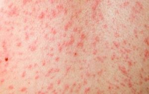 measles photo