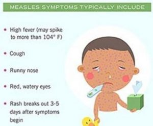 measles symptoms