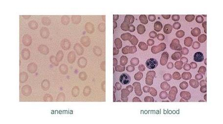 Normal blood vs. Anemia