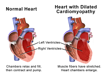 Normal Heart vs. Cardiomegaly