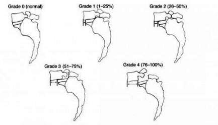 Anterolisthesis Grades