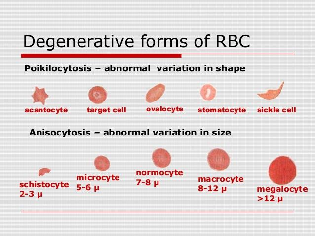 Degenerative forms of RBC (red blood cells) Anisocytosis