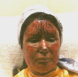 A patient with argyria