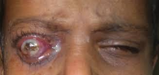 xerophthalmia Pictures