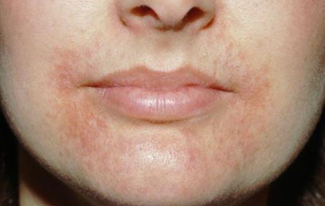 perioral dermatitis images 5