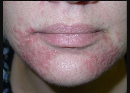 perioral dermatitis images 6