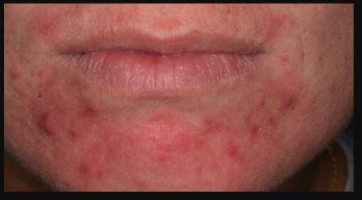 perioral dermatitis images