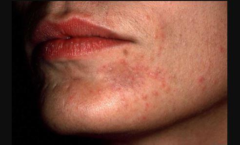 perioral dermatitis pics