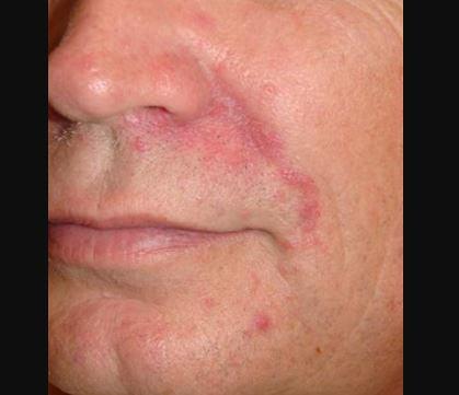 perioral dermatitis pictures