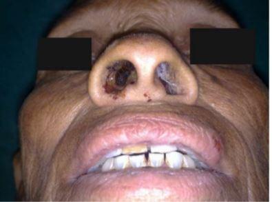 Nasal Myiasis