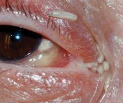 Ocular myiasis 2