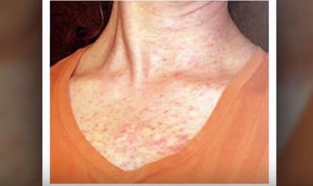 Amoxicillin rash pictures 6