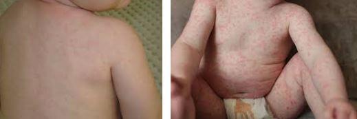 Amoxicillin rash pictures 7