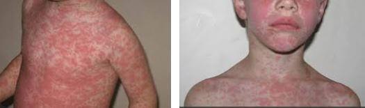 Amoxicillin rash pictures